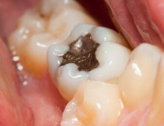 Füllungstherapie: Amalgamfüllung – Wie schädlich ist diese Zahnfüllung?